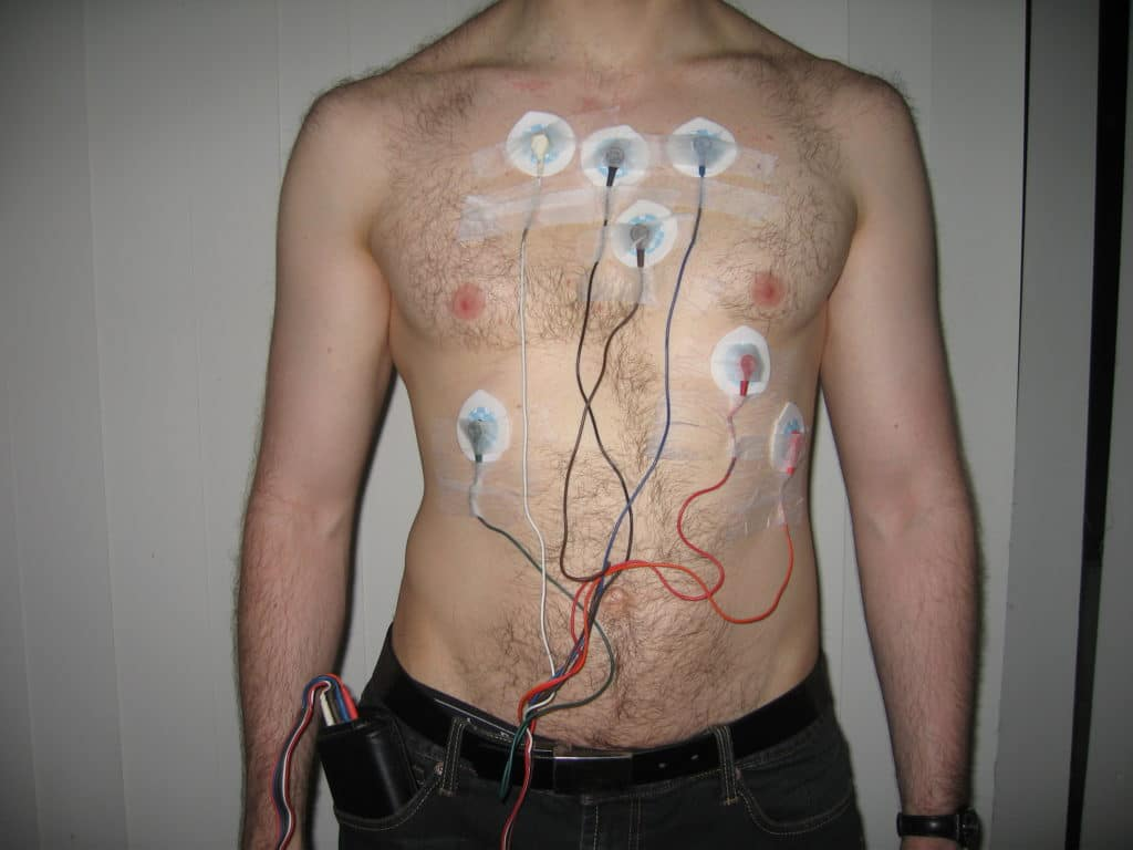 Электроды и закрепленное на поясе устройство для регистрации результатов исследования