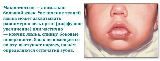 Чаще всего встречается макроглоссия у детей