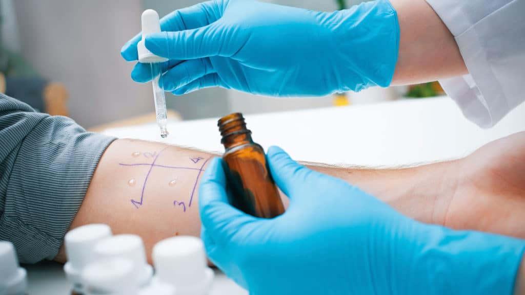 В лечении аллергии изначально принимают участие врачи-аллергологи