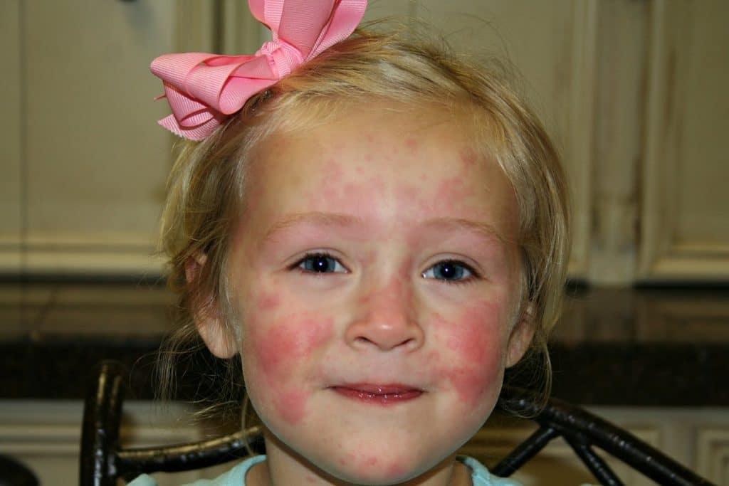 Симптомы острой крапивницы у детей