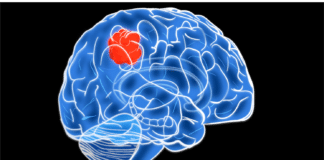 Пинеалома: опухоль в центре головного мозга
