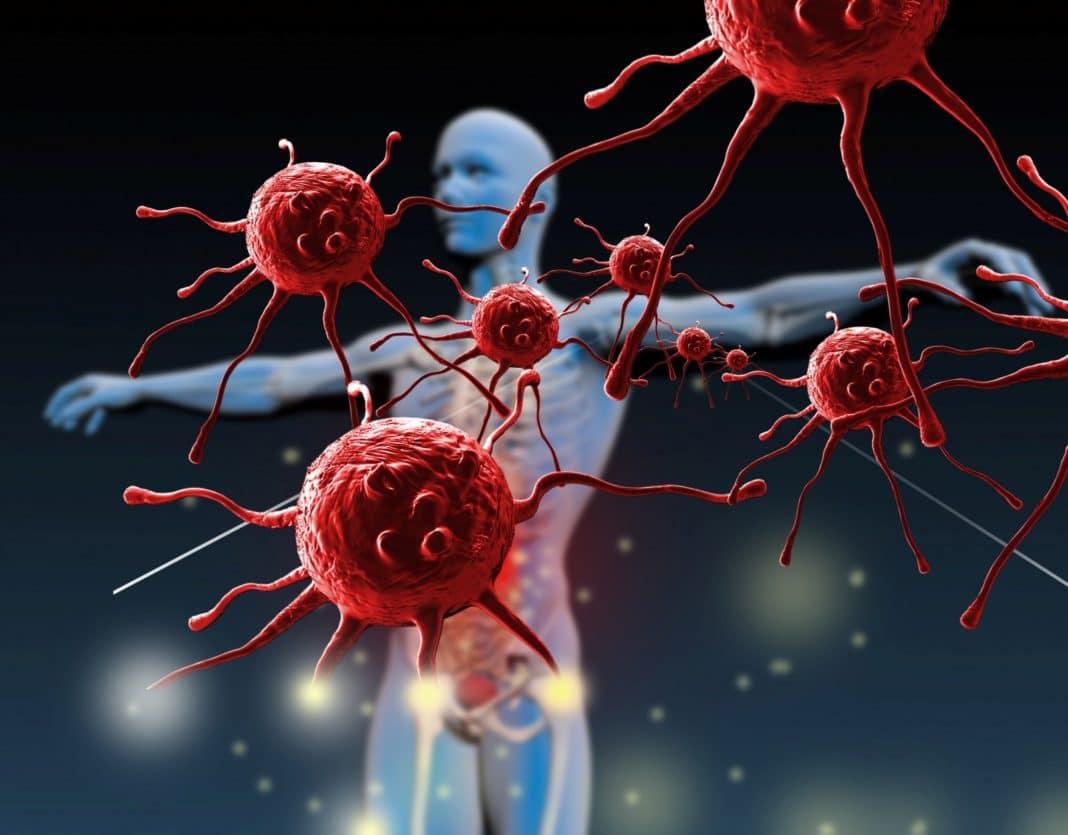 Причины заражения ВИЧ