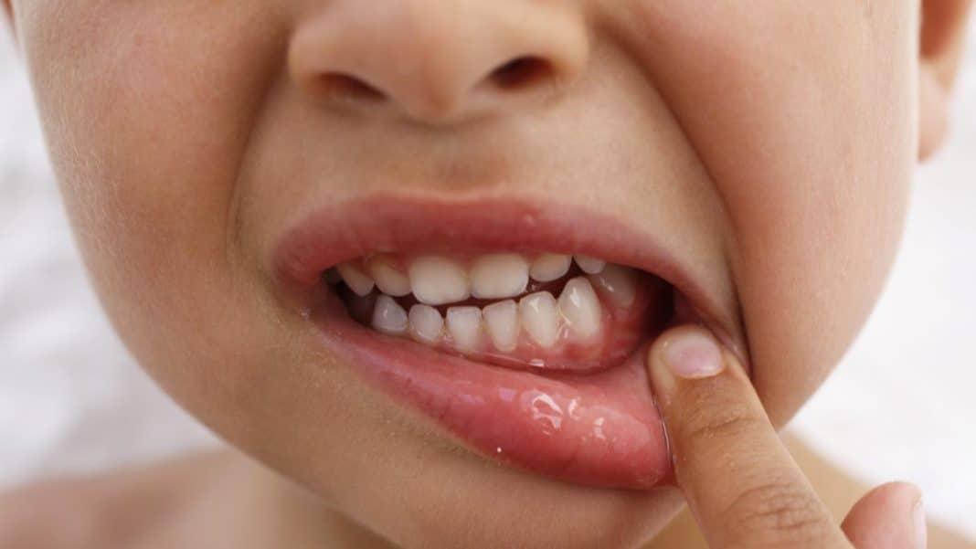 Как лечить гингивит и стоматиту детей до 3 лет