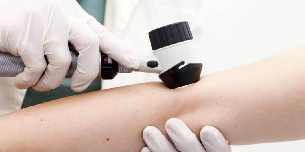 Лечение бородавок при помощи специалистов