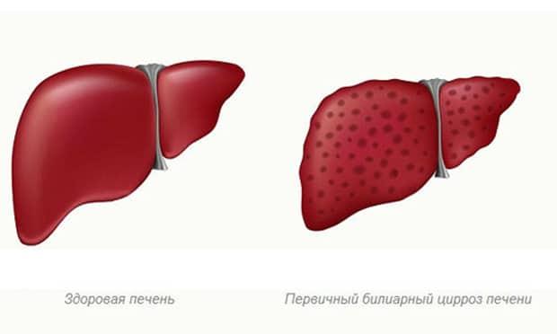 Здоровая печень и первичный билиарный цирроз печени