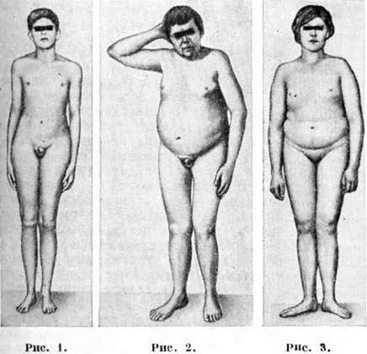 Евнухоидизм у мужчин (рис. 1-2) и у женщин (рис. 3)
