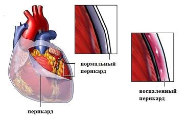 Гидроперикард сердца схема