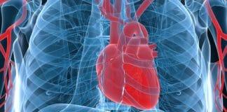 Гидроперикард сердца
