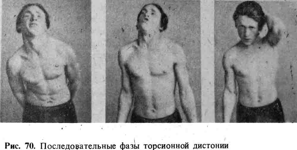 Торсионная дистония - симптомы и проявления
