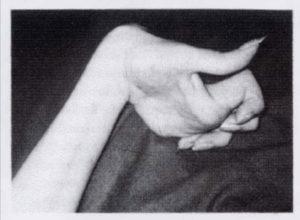 Торсионная дистония - фото 2