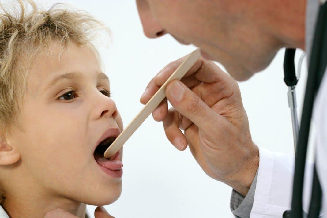 Герпесный стоматит у детей