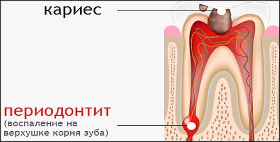 Почему ноет депульпированный зуб