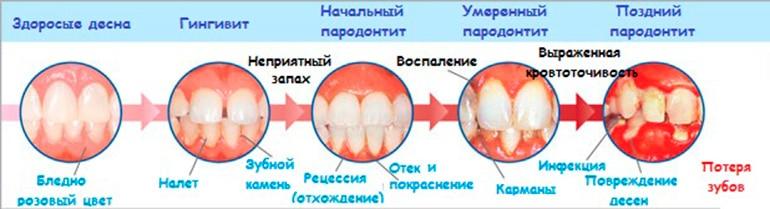 Лечение гингивита в домашних условиях у беременных - Russkij-Litra.ru