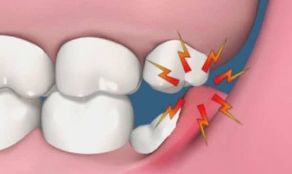 Зуб мудрости и воспаленные десны