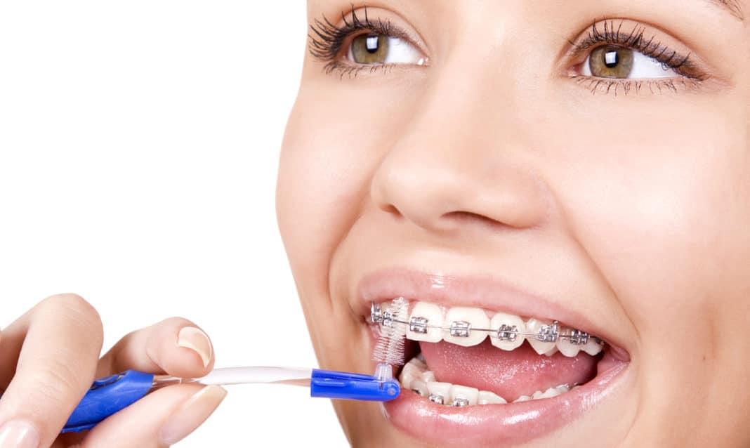 Что такое чистка зубов перед брекетами