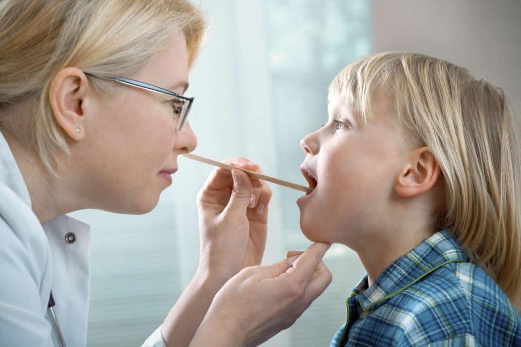 Лакунарная ангина у детей - диагностика