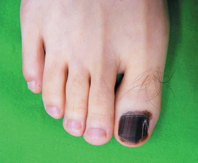 рак ногтей