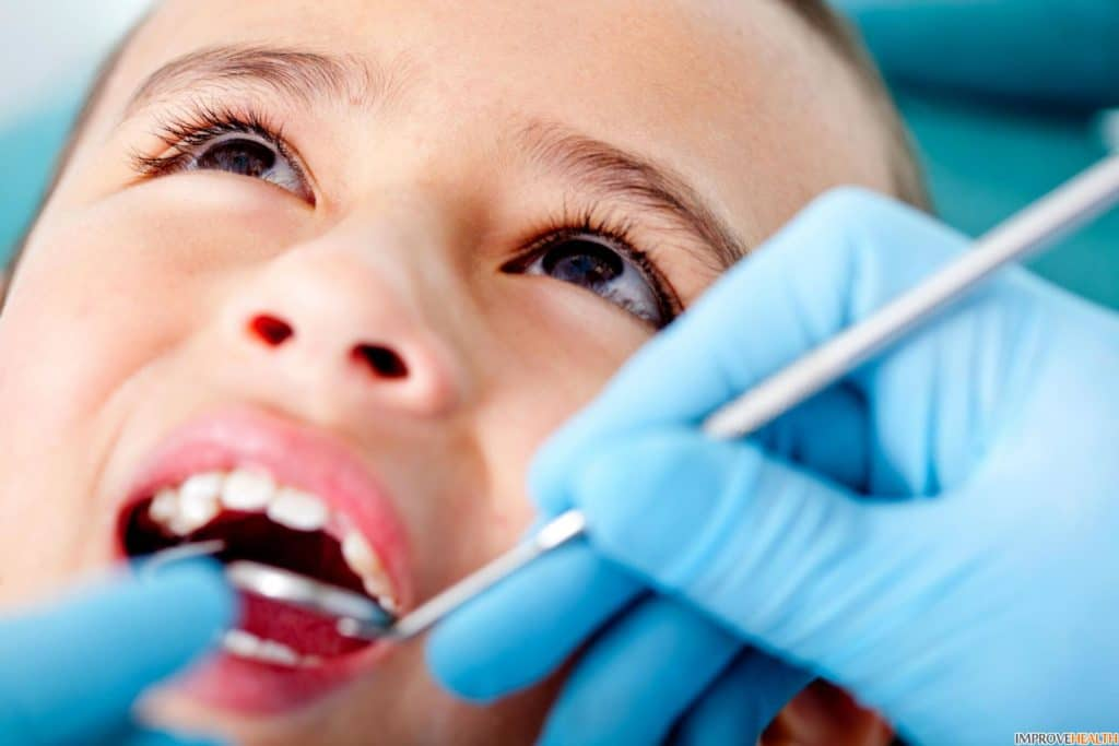 Пульпит на молочных зубах