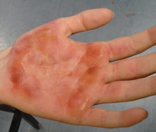 Что делать при химическом ожоге кожи