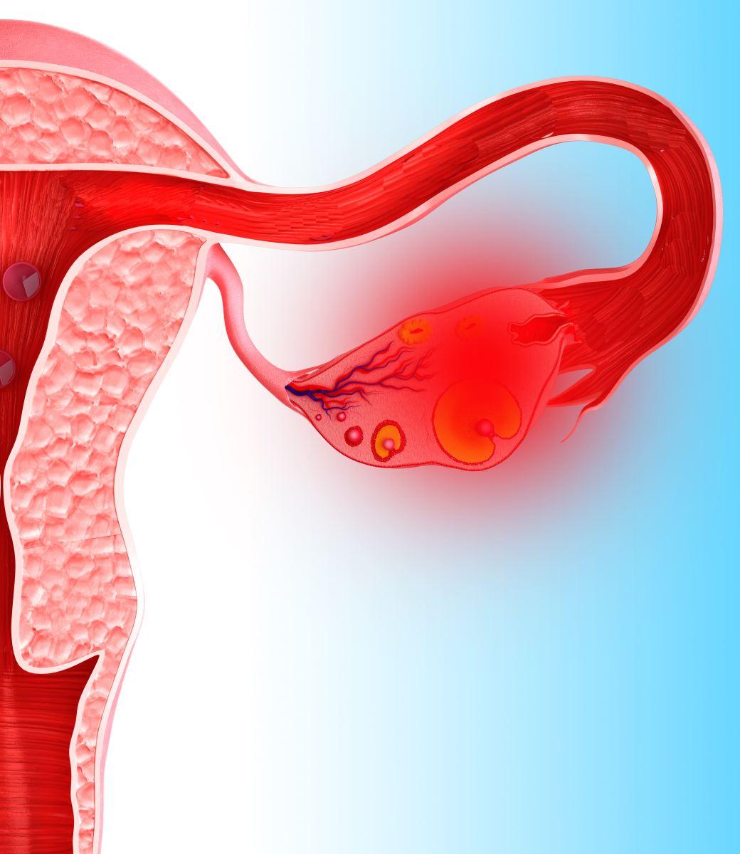 разрыв функциональной кисты яичника