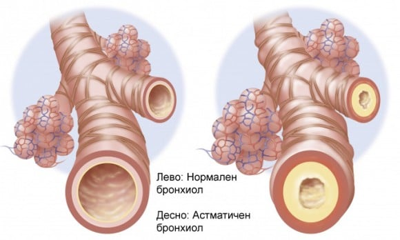 Бронхиальная астма - схема
