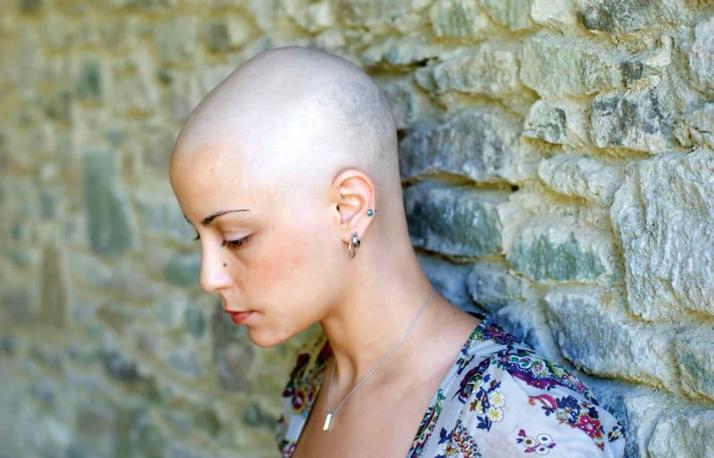 Выпадение волос после химиотерапии