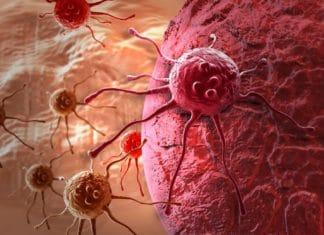 Изображение раковых клеток