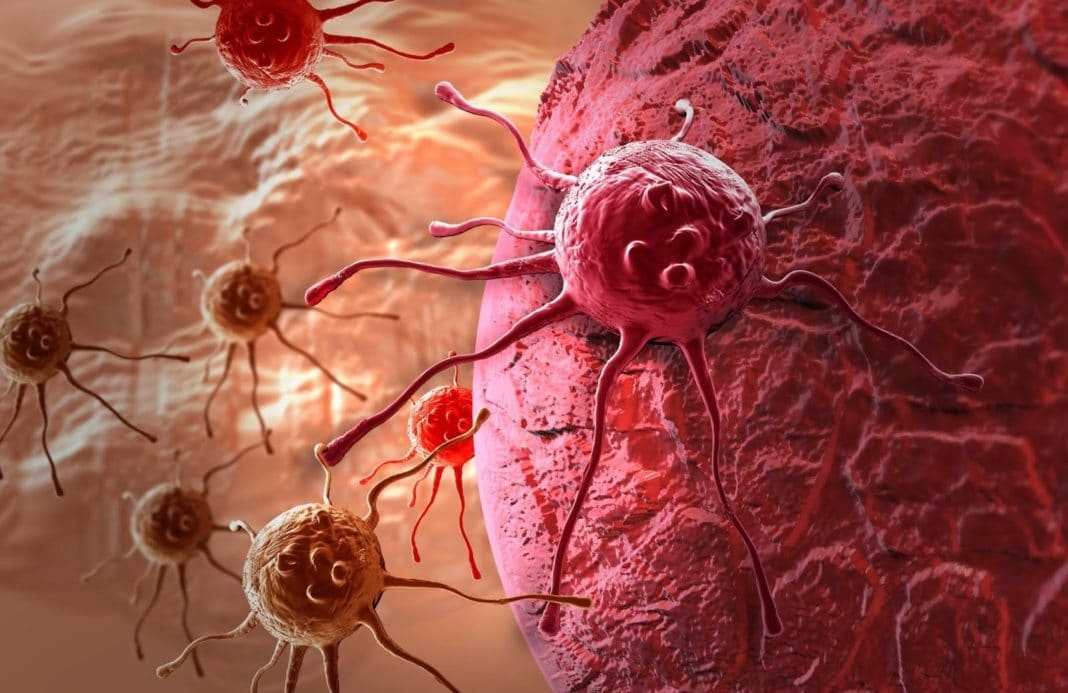 Передается ли рак через слюну