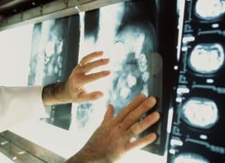 Хордома - причины, симптомы и диагностика