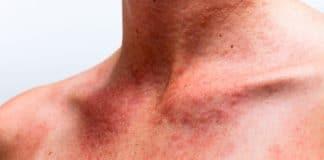 Аллергия на солнечный свет