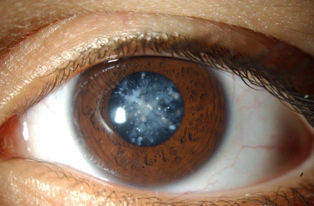 Помутнение при катаракте