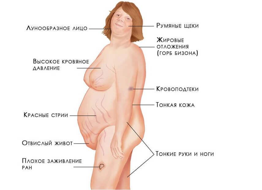 Основные симптомы кортикостеромы надпочечников