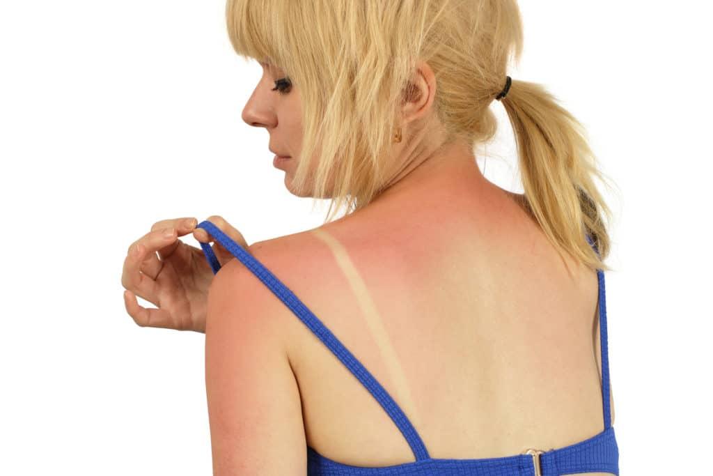 Легкий солнечный ожог, покраснение кожи