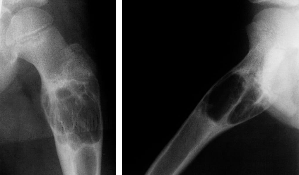 Аневризматическая костная киста - клиническая картина