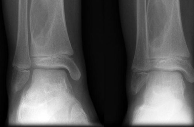 Формы аневризматической костной кисты - описание и ее диагностика