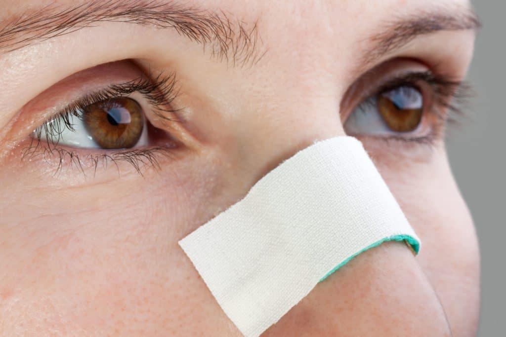 Причины появления гематомы носовой перегородки