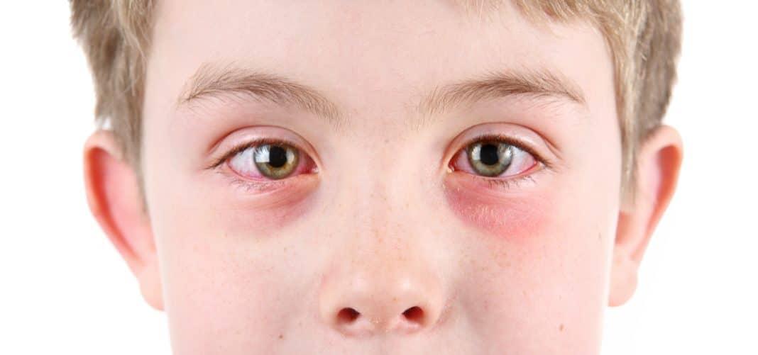 Аллергия на мяту у детей
