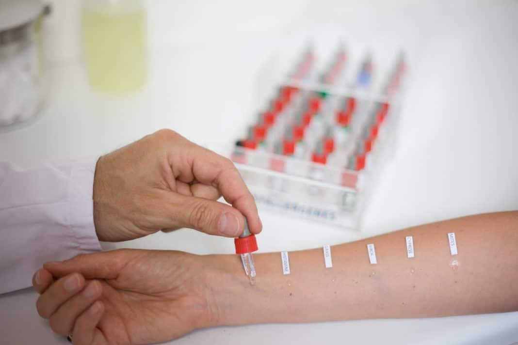 Диагностика аллергии на миндаль