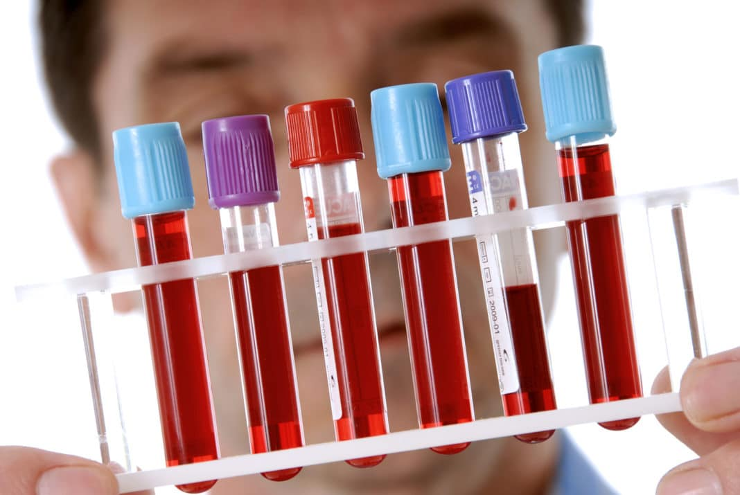 Норма белка крови