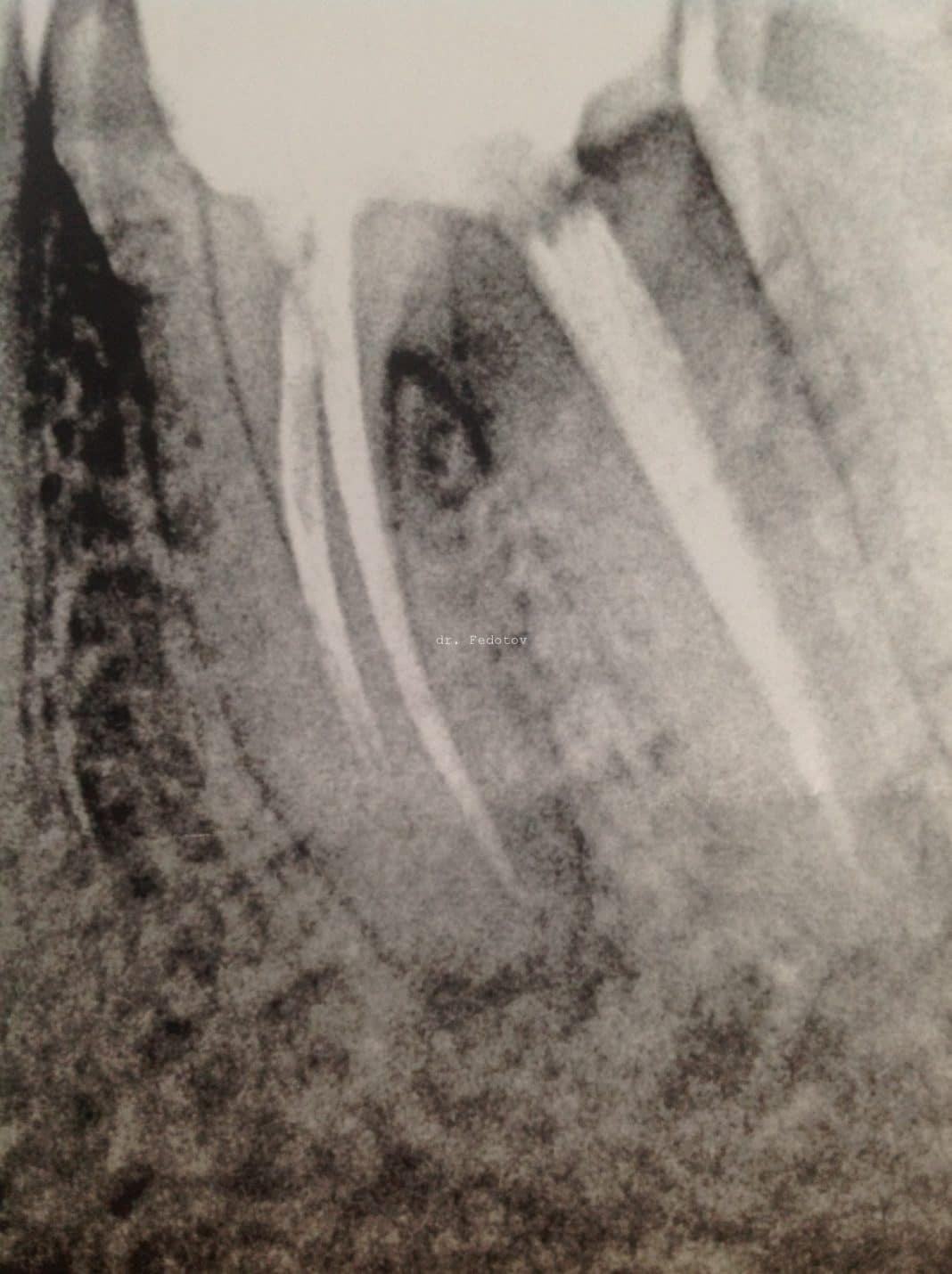 Перелом корня зуба симптомы