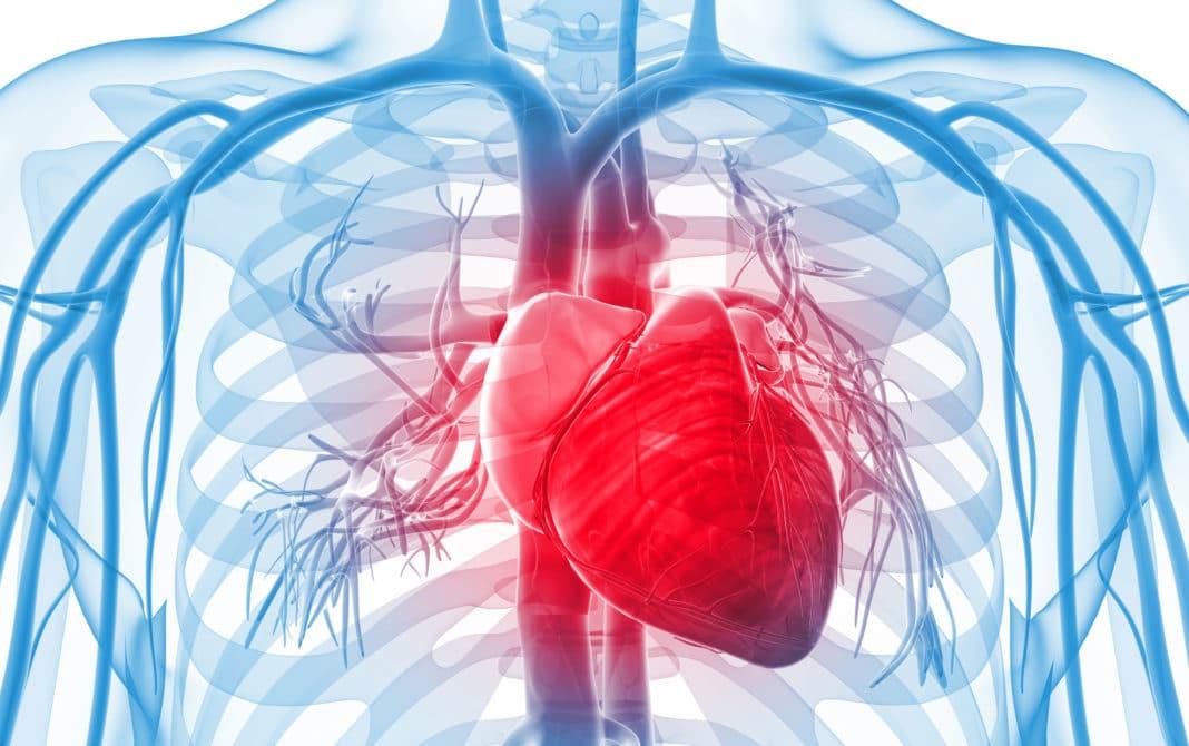 Неспецифический аортоартериит - классификация