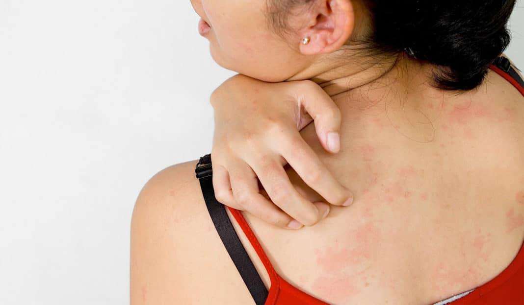 Распространенные виды кожных заболеваний