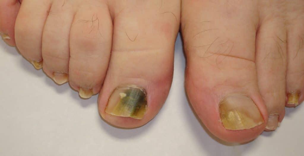 Диагностика рака ногтей