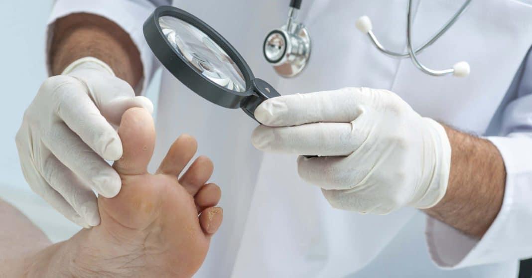 Рак ногтей: симптомы и лечение
