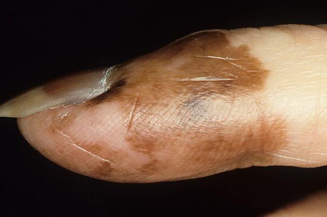 рак ногтя на руке фото