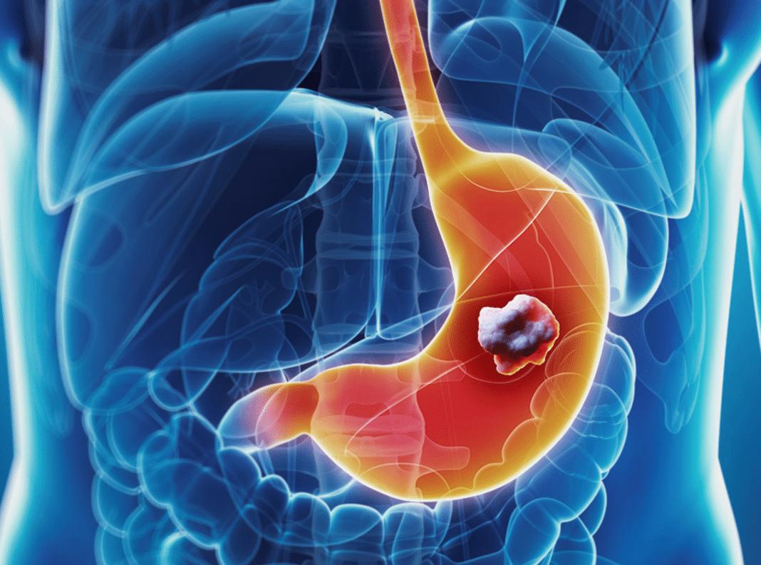 Удаление аденомы желудка