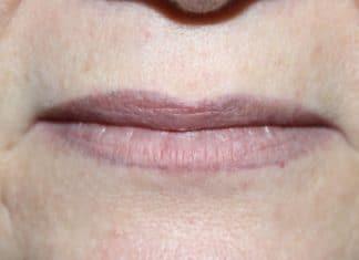 Почему синеют губы у взрослого человека?