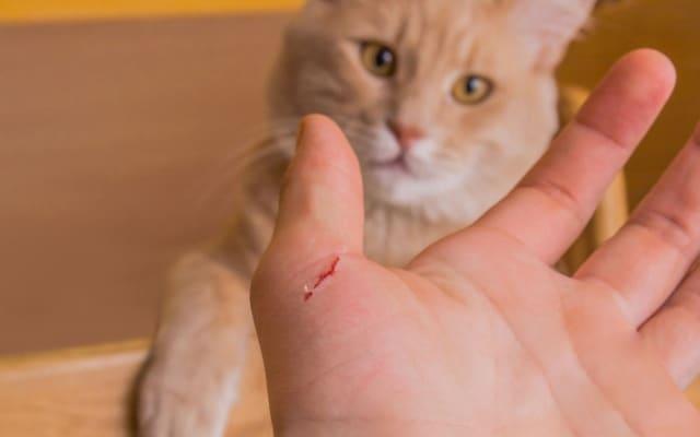 Болезнь кошачьей царапины: симптомы