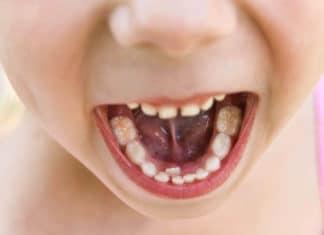 Зубы в два ряда