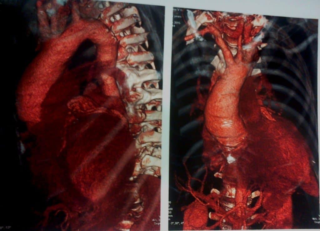 КТ-аортография коарктация аорты